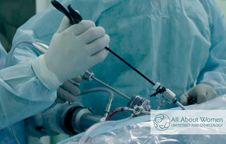 laparoscopic surgery explanation and benefits