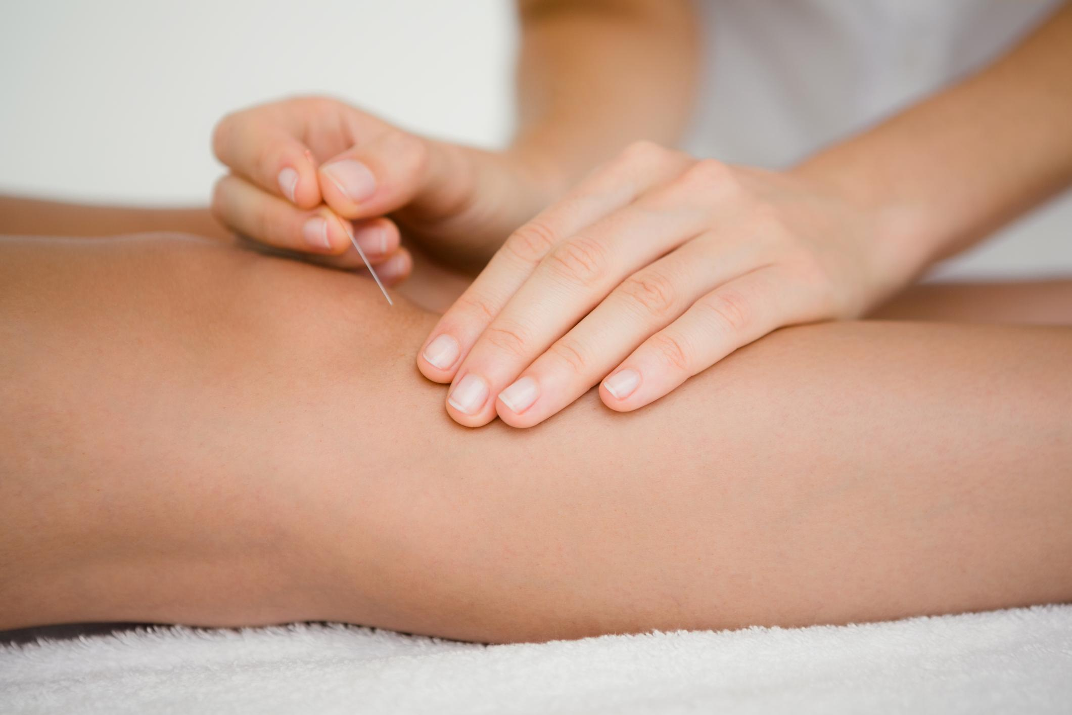 Looking for an Alternative to Hot Flash Treatment? Try Acupuncture